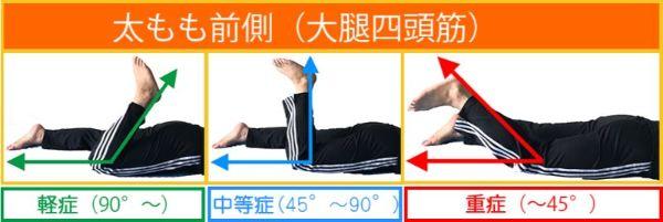 太もも前側(大腿四頭筋)の肉離れ重症度